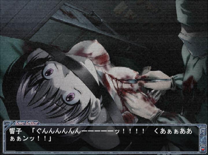 ビデオにはメスで胸を切られる音羽響子の姿が…。