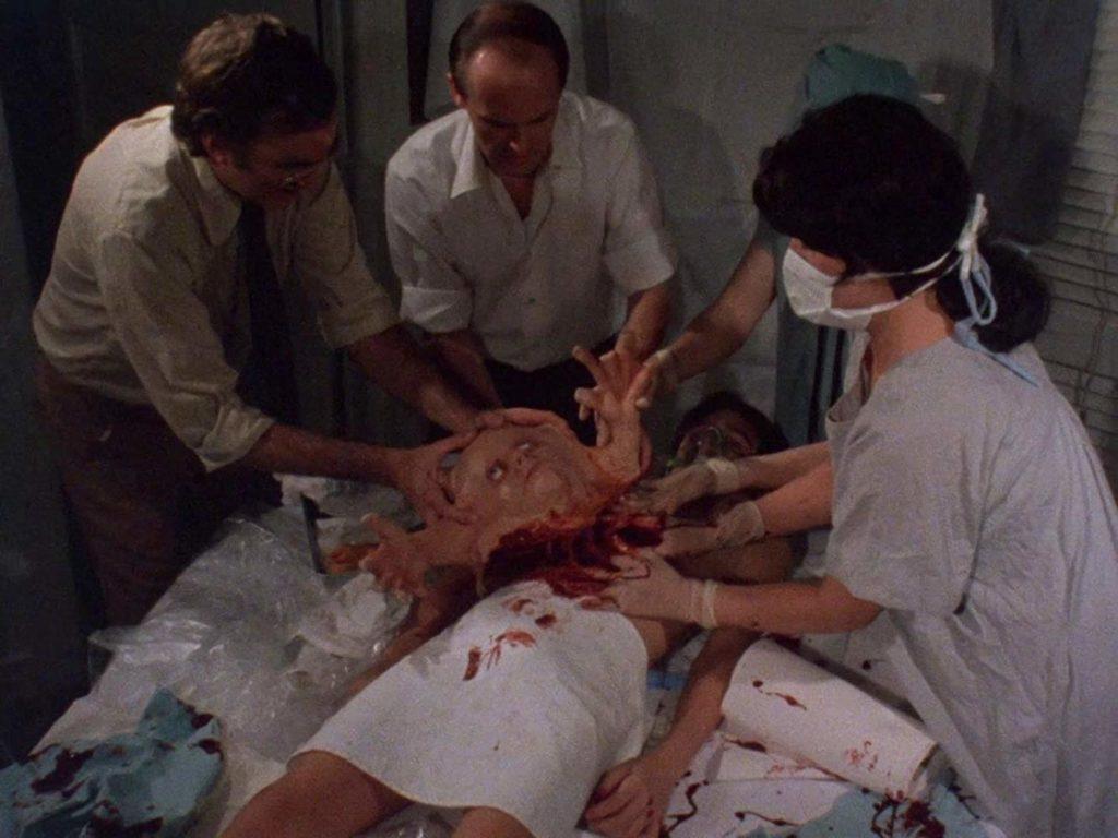 デュアンとベリアルの2人はシャム双生児として生まれたが、10歳の時よじれた肉塊に過ぎぬベリアルを父はいみ嫌い3人の医師に分離手術を行なわせ、ベリアルはゴミ袋に入れられて捨てられた。