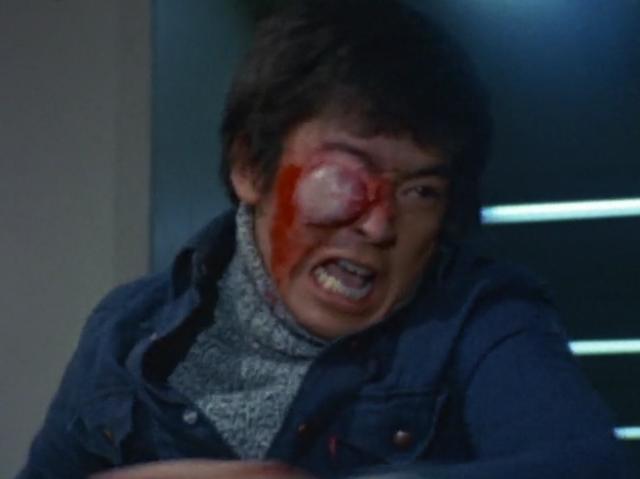 ブラックテリナはテリナQでゲンの右目を負傷させる。