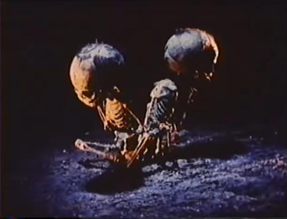 腰と腰がくっついた双子(シャム双生児)の太郎丸・次郎丸