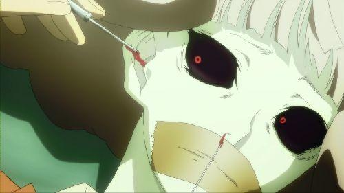 恭子への残酷な人体実験…拷問「耳と鼻から脳を破壊する」。穿刺針とカテーテルで脳を破壊するが、それも効果無し。